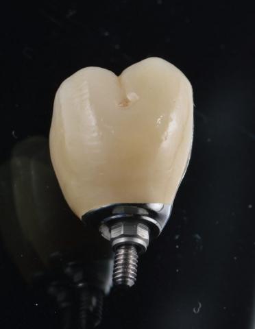 Implantat, Indiv abutment, I Butment 5