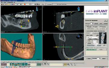 CeHa Implant, Med 3D Bild 2