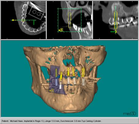 CeHa Implant, Med 3D Bild 3